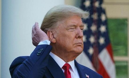 """حقيقة غريبة حول شعر """"ترامب"""" وعلاقته بالبطاطس المقلية !"""