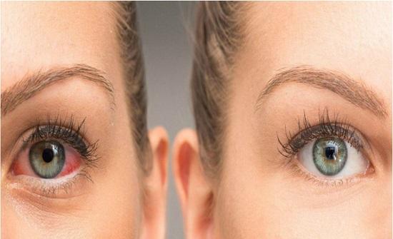 ما سبب احمرار عينيك؟.. وكيف تعالجينهما؟