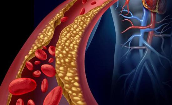 للحد من ارتفاع نسبة الكوليسترول في الدم... اتبعوا هذه النصائح!
