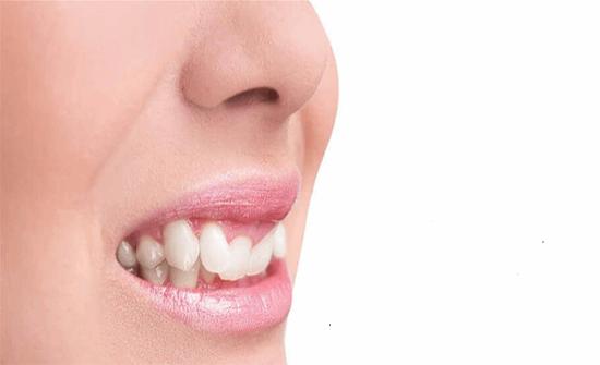 إحذروا الابتسام بهذه الطريقة قد يسبب أمراضاً خطرة!