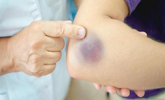 البقع الزرقاء على الجسم تشير إلى أمراض خطيرة
