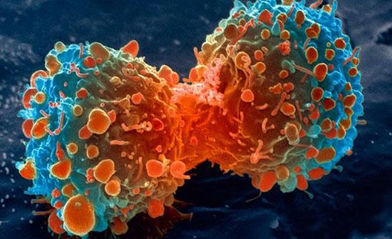 """""""كوكتيل"""" لعلاج السرطان.. تعرفوا إلى مكوناته!"""