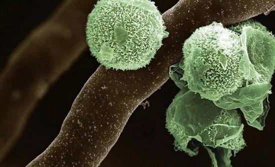 تفاصيل أعراض الإصابة بمرض الفطر الأخضر