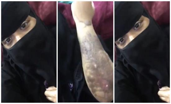 """بالفيديو : فتاة  عربية """"يتيمة"""" تتهم عمها بتعذيبها بماء النار"""