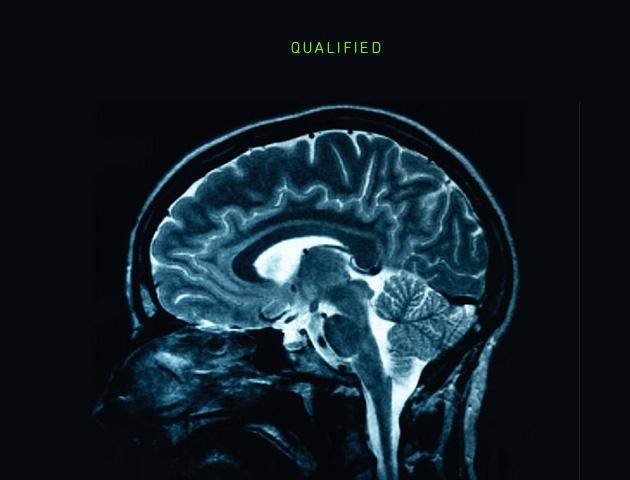 brain-scan_530_qualified