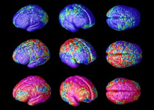 brain-internet-530x379