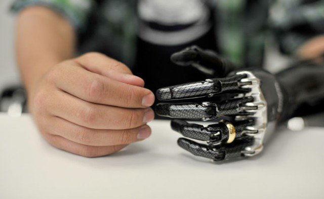 Man controls prosthetic arm with his brain