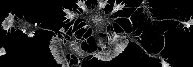 Scan of neurons connected