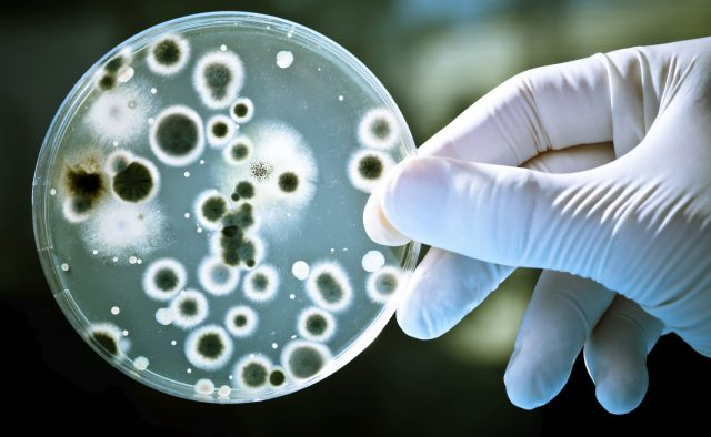 bacteria shown in petri dish by hand in white glove