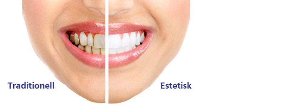 bästa estetisk tandvård stockholm