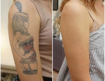 tatuering malmö bäst