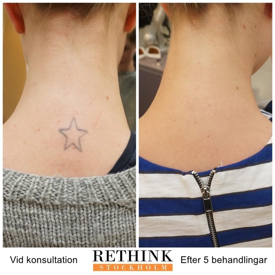 borttagning av tatuering norrköping