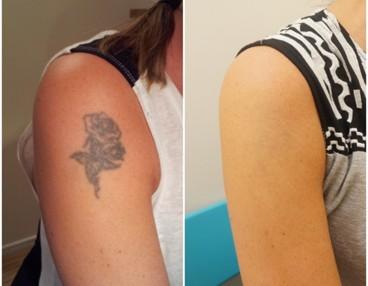 ta bort tatuering flashback