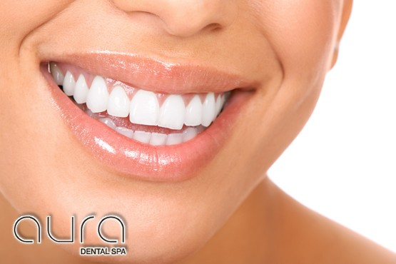 £449 for 2 porcelain veneers, £799 for 4 porcelain veneers or £1499 for 8 porcelain veneers, inc. consultation at Aura Dental Spa - save up to 63%