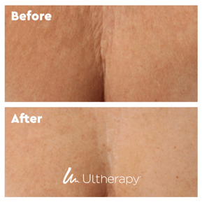 Ultherapy Chest River Medical