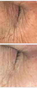 1000 ögon