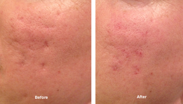 Acne Scaring - before and after