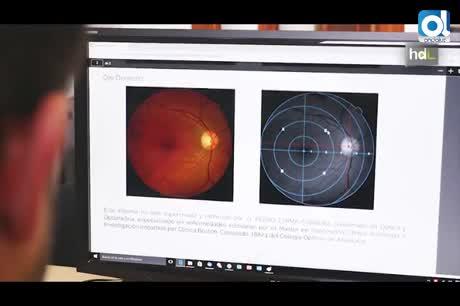 Un nuevo sistema facilita el diagnóstico precoz de enfermedades causantes de ceguera