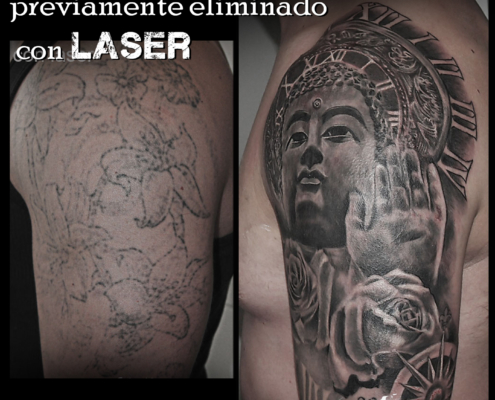 tatuaje cover up eliminacion con laser valencia 7