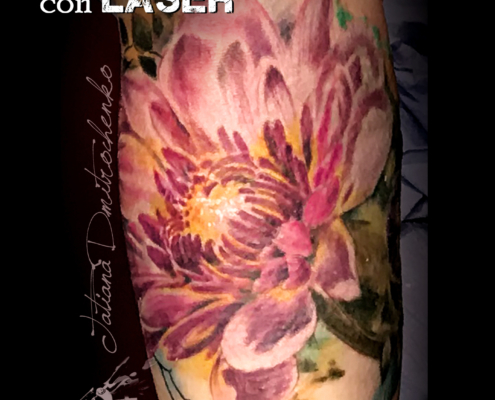 tatuajes cover up eliminacion con laser en valencia