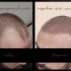 micropigmentación capilar antes y después