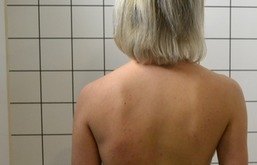 Autor: <a href='http://commons.wikimedia.org/wiki/User:Spondylos'>Scoliosis Treatment Crass Cheneau</a> Lizenz: <a href='http://creativecommons.org/licenses/cc-by-sa/4.0'>CC-BY-SA-4.0</a>