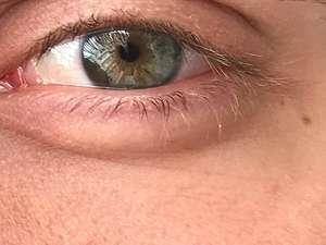 Πλαστελίνη στα μάτια