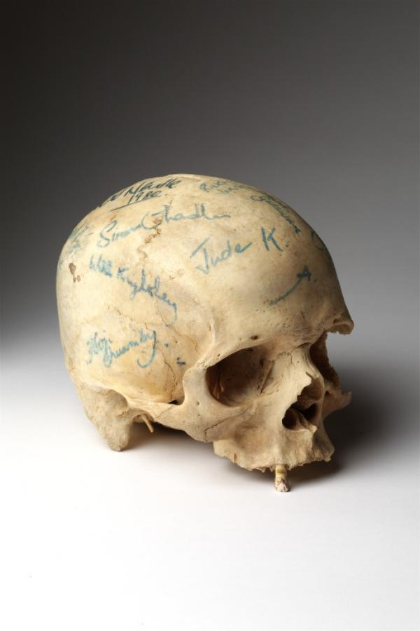 Skull of Yorick by Jonathan Pryce as Hamlet in Shakespeare's Hamlet, Royal Court Theatre 1980, Museum Ref: S.151-2007 © Victoria and Albert Museum, London