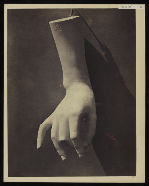 42591 Albumen print of the cast of a hand by Adolphe Bilordeaux