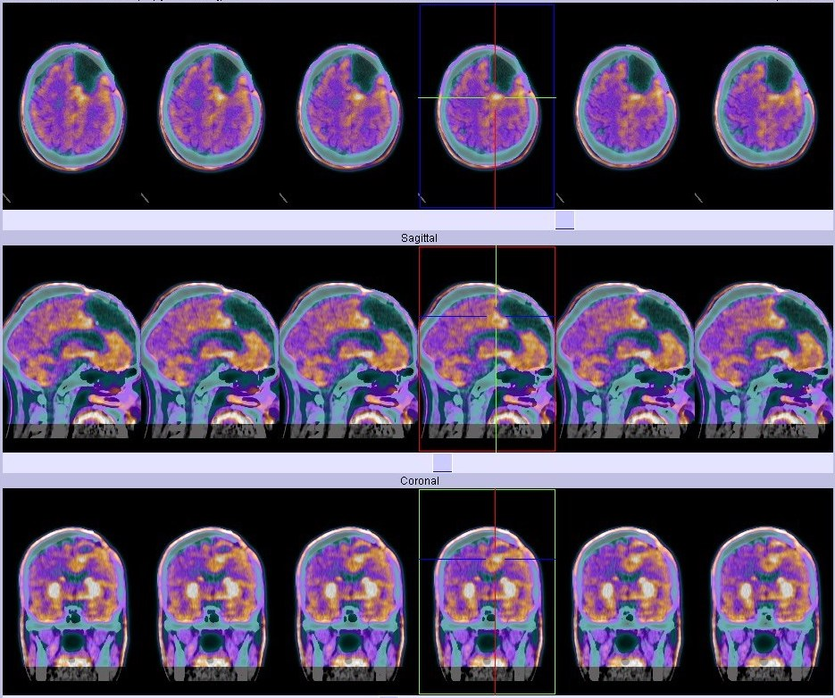 ANGLE's Technology Used To Detect Aggressive Brain Cancer