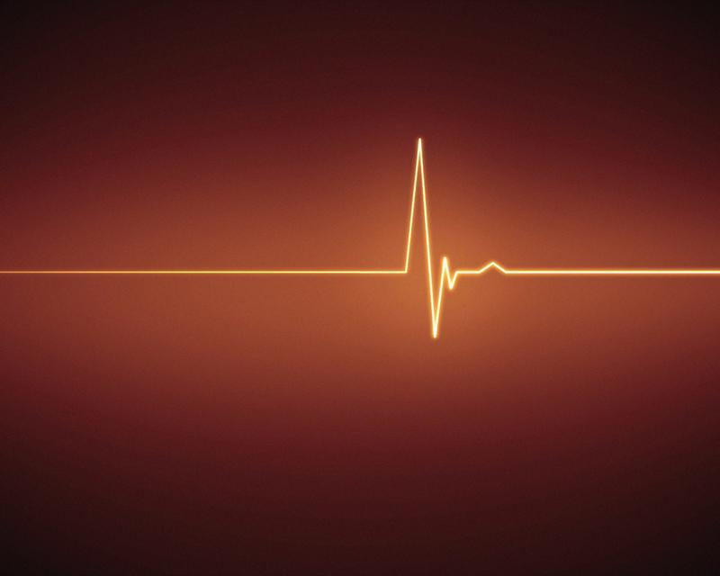 """Orange ECG heartbeat"" stock image"