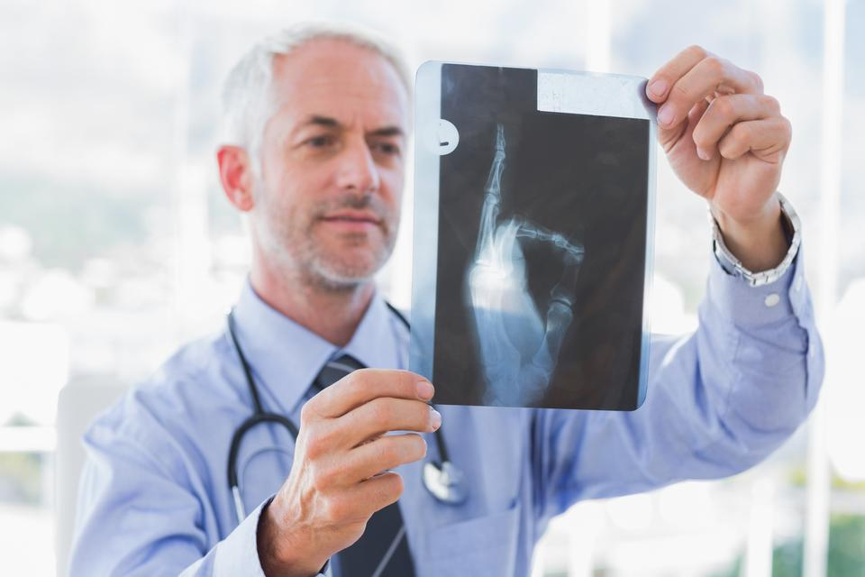 """Doctor holding an xray"" stock image"