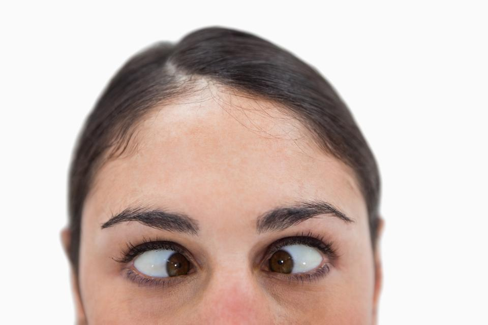 """Close up of a woman crosseyed"" stock image"