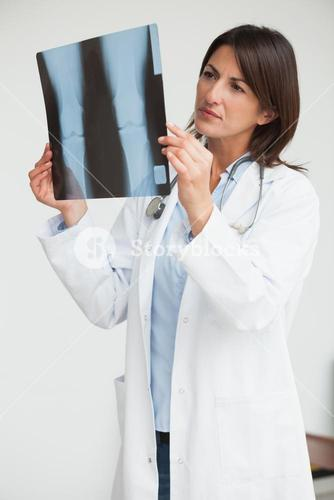 Doctor holding up xray and examining
