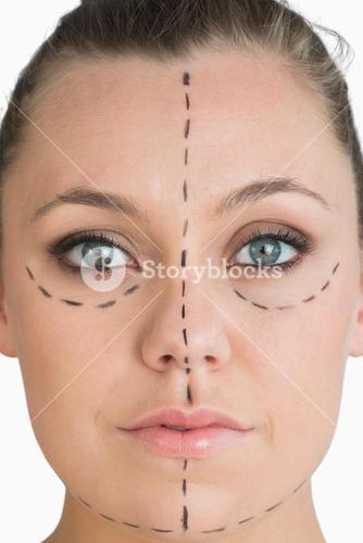 Woman ready to get face lift