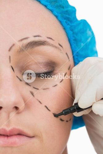 Plastic surgeon writing in the woman face
