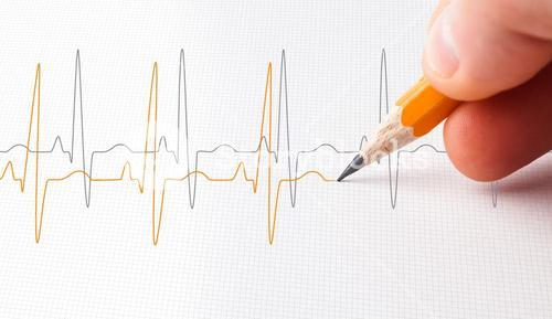 Two lines of heart beats