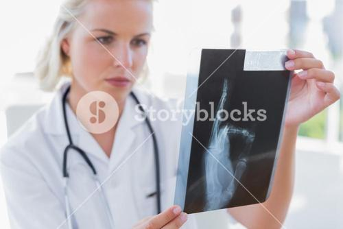 Serious nurse holding an xray