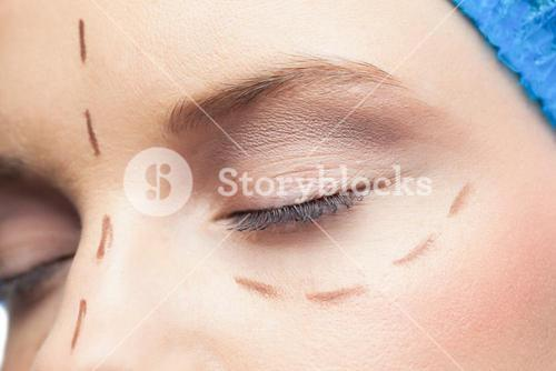 Extreme close up on relaxed patient with dotted lines on the face