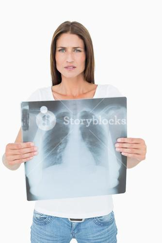 Portrait of a serious young woman holding lung xray
