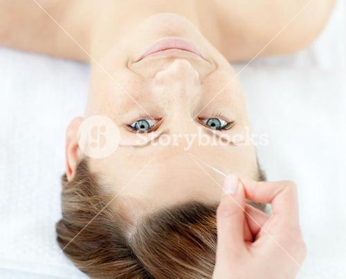 Acupuncture needles on a beautiful womans head
