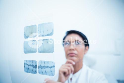Concentrated dentist looking at x-ray