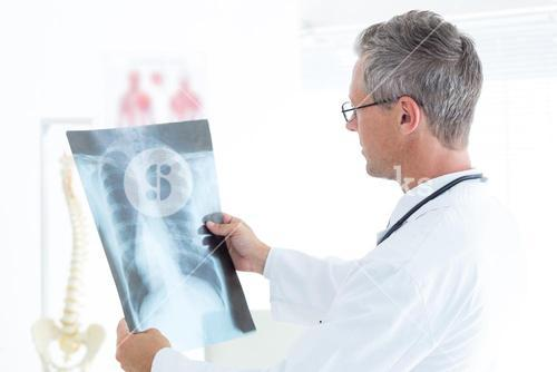 Thoughtful doctor holding xray