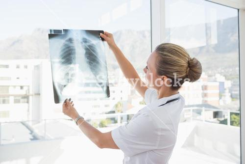 Doctor looking at Xray beside windows