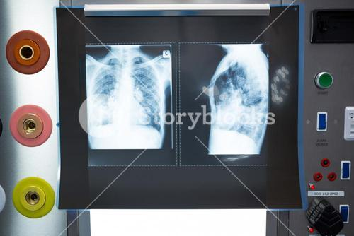 Close-up of x-ray on lightbox