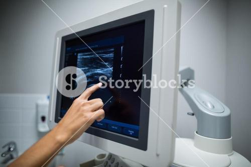 Nurse pointing at ultrasonic monitor
