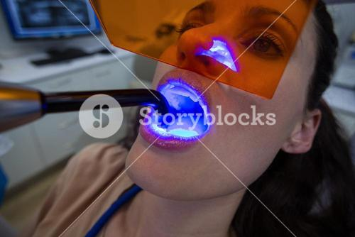 Dentists examining female patient with dental curing light
