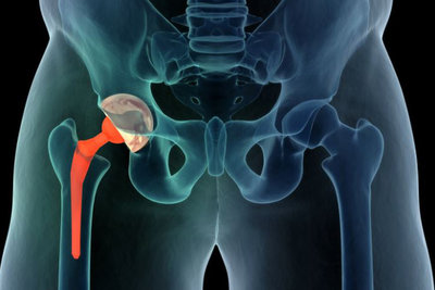 What do I need after a Hip Operation?