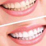 Blanqueamiento Led + Limpieza dental