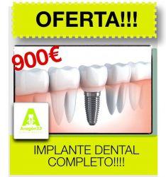 Implante dental completo